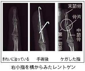 剥離 骨折 治療